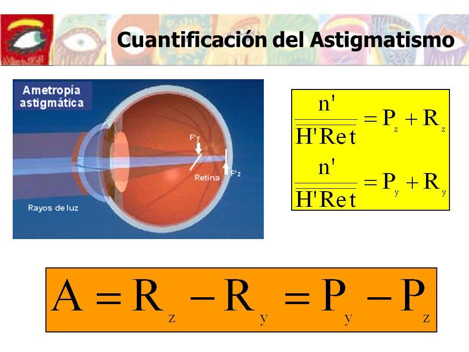 Clasificación del astigmatismo CURVATURA DE LOS MERIDIANOS PRINCIPALES Directo: Mayor curvatura en el meridiano vertical (90º 30º) P y >P z R y 0 Inverso: Mayor curvatura en el meridiano horizontal (0º 30º) P y R z A<0 Oblicuo: Mayor curvatura en el meridiano situado a (45º 15º)