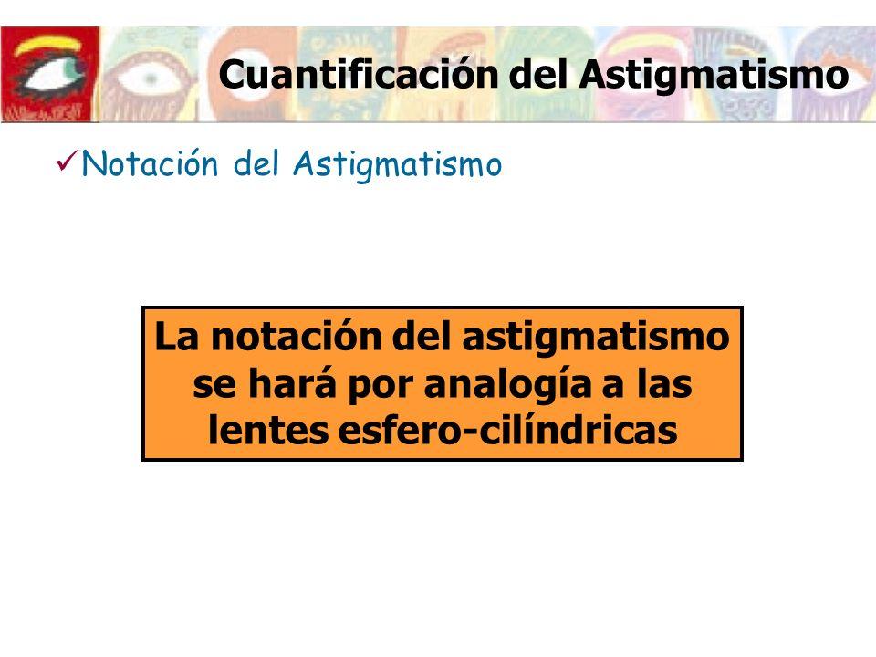 Cuantificación del Astigmatismo Lente esfero-cilíndrica: (Esf) (Cil) (Esf) Potencia lente esférica (Cil) Potencia lente cilíndrica Ángulo que forma el eje de la lente cilíndrica con la horizontal Notación del Astigmatismo