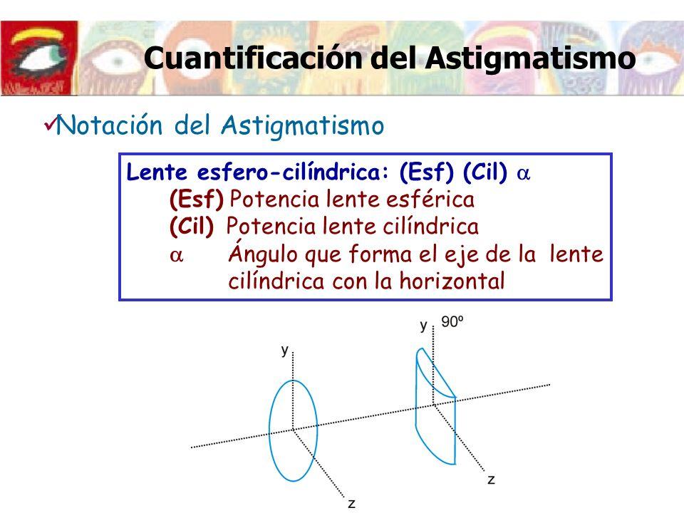 Cuantificación del Astigmatismo Lente esfero-cilíndrica: (Esf) (Cil) (Esf) Potencia lente esférica (Cil) Potencia lente cilíndrica Ángulo que forma el