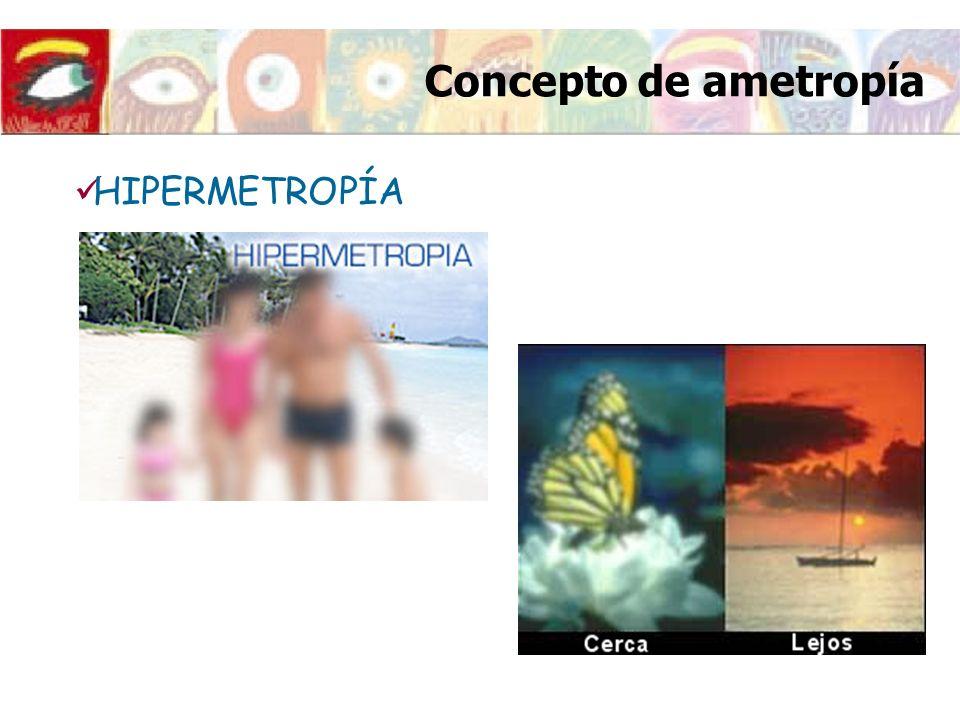 HIPERMETROPÍA Concepto de ametropía