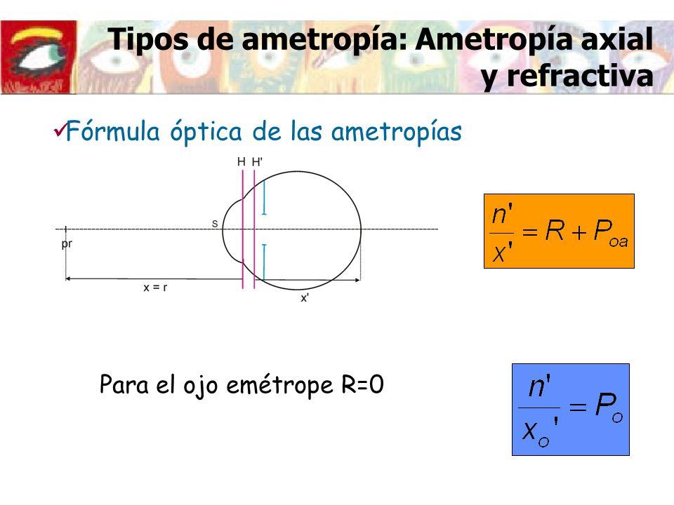 Tipos de ametropía: Ametropía axial y refractiva Fórmula óptica de las ametropías Para el ojo emétrope R=0