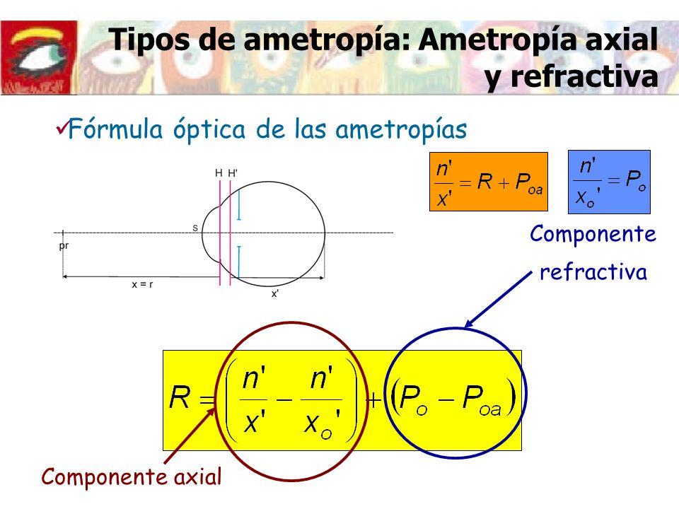 Tipos de ametropía: Ametropía axial y refractiva Fórmula óptica de las ametropías Componente axial Componente refractiva