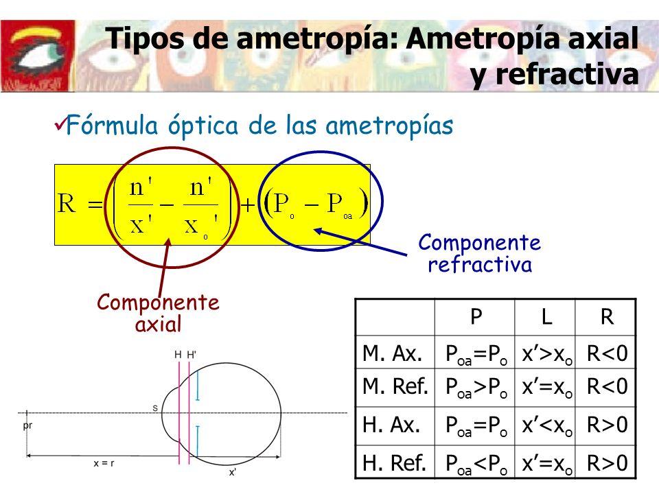 Tipos de ametropía: Ametropía axial y refractiva Componente axial Componente refractiva PLR M. Ax.P oa =P o x>x o R<0 M. Ref.P oa >P o x=x o R<0 H. Ax