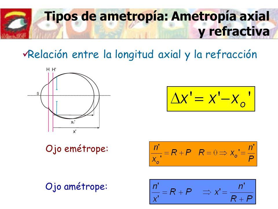 Tipos de ametropía: Ametropía axial y refractiva Relación entre la longitud axial y la refracción Ojo emétrope: Ojo amétrope: