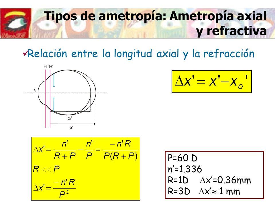 Tipos de ametropía: Ametropía axial y refractiva Relación entre la longitud axial y la refracción P=60 D n=1.336 R=1D x=0.36mm R=3D x 1 mm