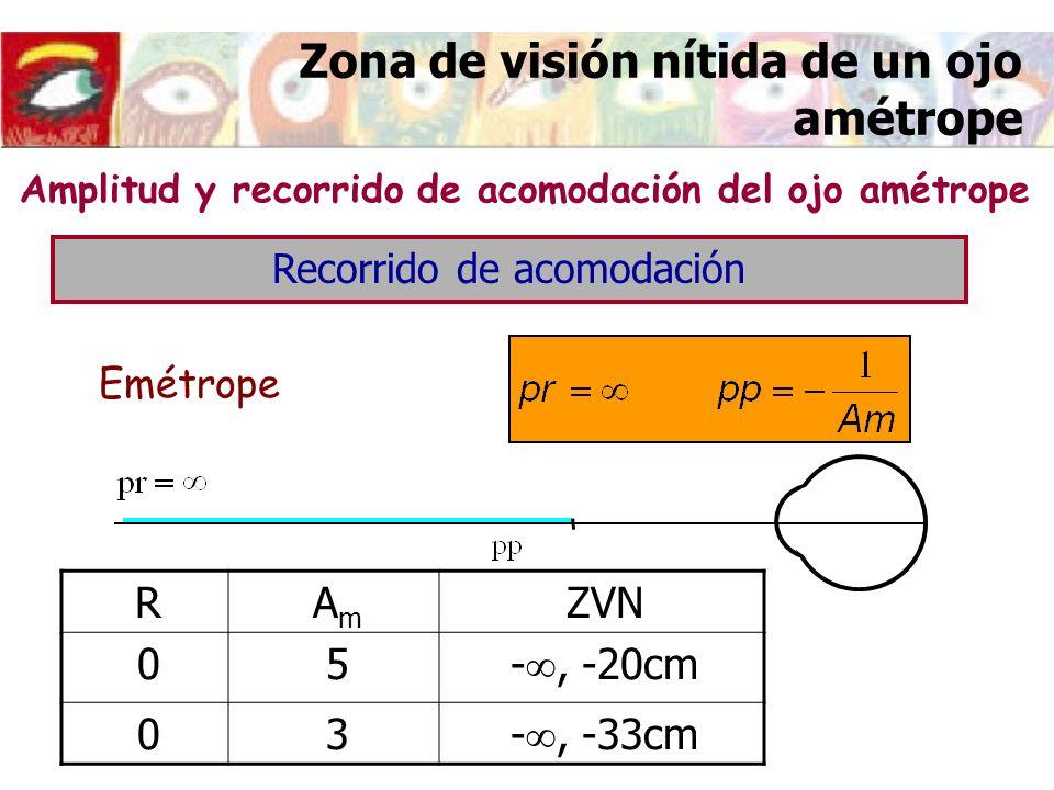 Zona de visión nítida de un ojo amétrope Amplitud y recorrido de acomodación del ojo amétrope Emétrope RAmAm ZVN 05 -, -20cm 03 -, -33cm Recorrido de
