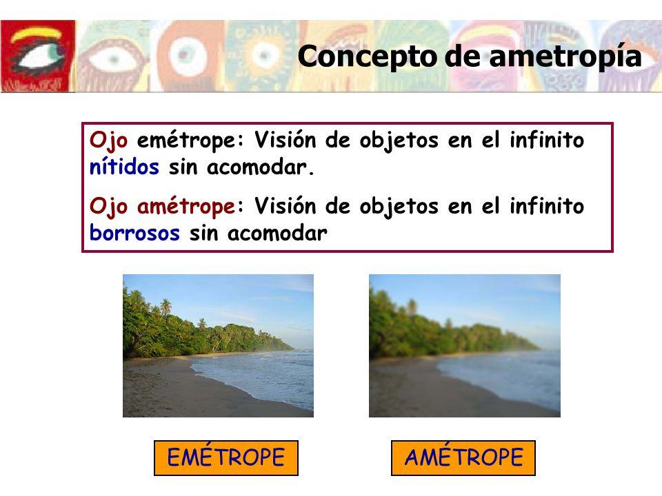 Ojo emétrope: Visión de objetos en el infinito nítidos sin acomodar. Ojo amétrope: Visión de objetos en el infinito borrosos sin acomodar EMÉTROPEAMÉT