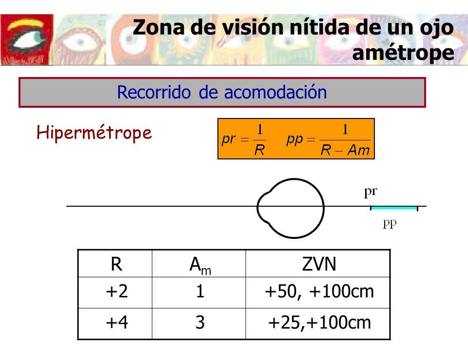 Zona de visión nítida de un ojo amétrope Hipermétrope Recorrido de acomodación RAmAm ZVN +21+50, +100cm +43+25,+100cm