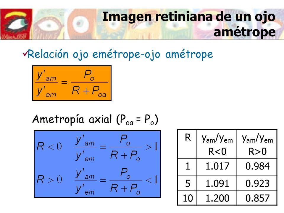 Imagen retiniana de un ojo amétrope Relación ojo emétrope-ojo amétrope Ametropía axial (P oa = P o ) Ry am /y em R<0 y am /y em R>0 11.0170.984 51.091