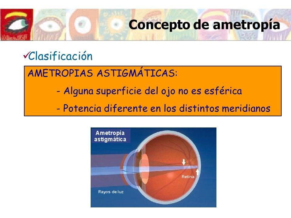 Concepto de ametropía AMETROPIAS ASTIGMÁTICAS: - Alguna superficie del ojo no es esférica - Potencia diferente en los distintos meridianos Clasificaci