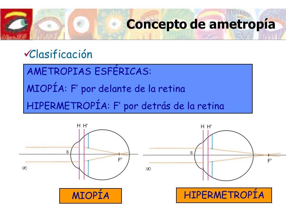 AMETROPIAS ESFÉRICAS: MIOPÍA: F por delante de la retina HIPERMETROPÍA: F por detrás de la retina Clasificación MIOPÍA HIPERMETROPÍA Concepto de ametr