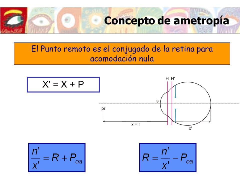 X = X + P El Punto remoto es el conjugado de la retina para acomodación nula Concepto de ametropía