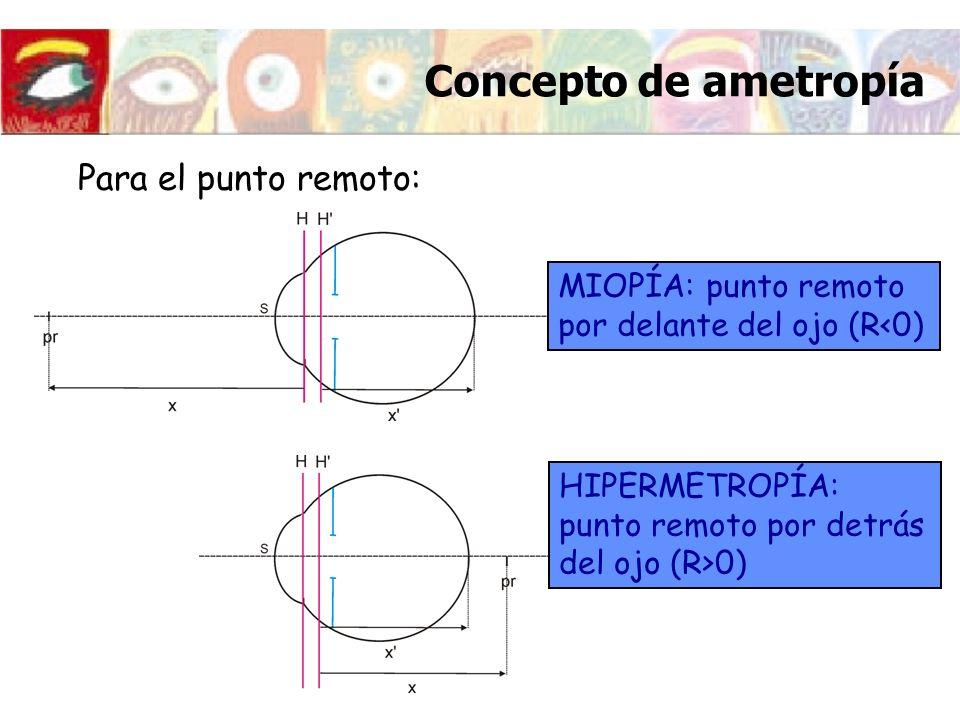 Para el punto remoto: MIOPÍA: punto remoto por delante del ojo (R<0) Concepto de ametropía HIPERMETROPÍA: punto remoto por detrás del ojo (R>0)