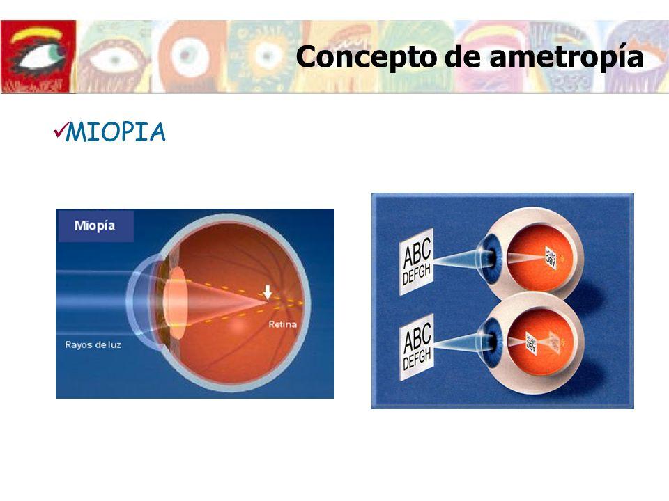MIOPIA Concepto de ametropía