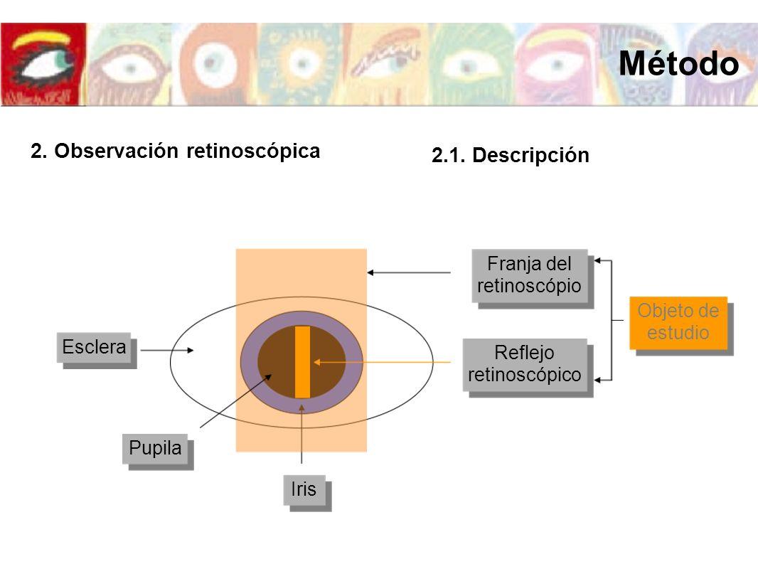 Iris Pupila Esclera Reflejo retinoscópico Franja del retinoscópio 2.1. Descripción Objeto de estudio 2. Observación retinoscópica Método