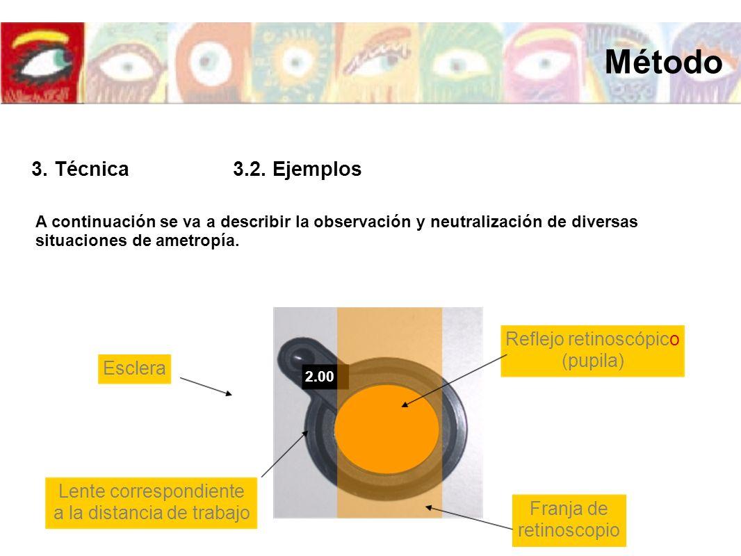 A continuación se va a describir la observación y neutralización de diversas situaciones de ametropía. 2.00 Lente correspondiente a la distancia de tr