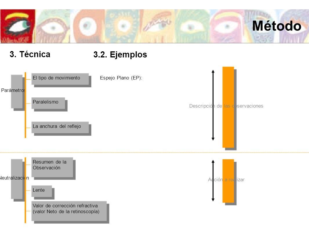 El tipo de movimiento La anchura del reflejo Paralelismo Parámetros Espejo Plano (EP): Resumen de la Observación Valor de corrección refractiva (valor
