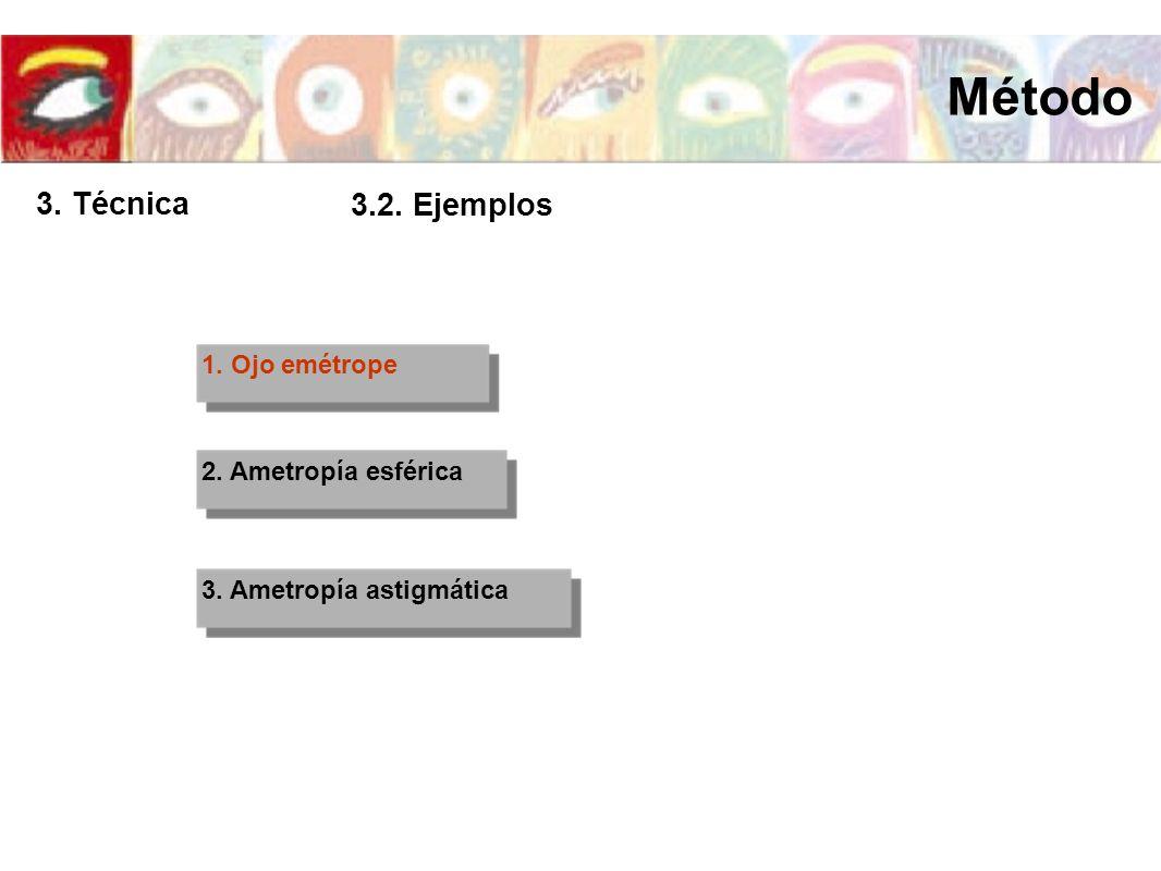 1. Ojo emétrope 2. Ametropía esférica 3. Ametropía astigmática Método 3. Técnica 3.2. Ejemplos