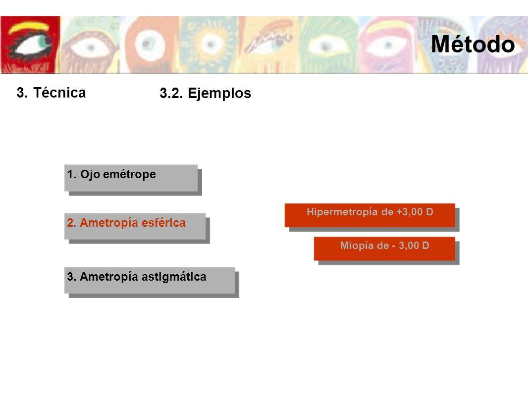 1. Ojo emétrope 2. Ametropía esférica 3. Ametropía astigmática Hipermetropía de +3,00 D Miopía de - 3,00 D Método 3. Técnica 3.2. Ejemplos