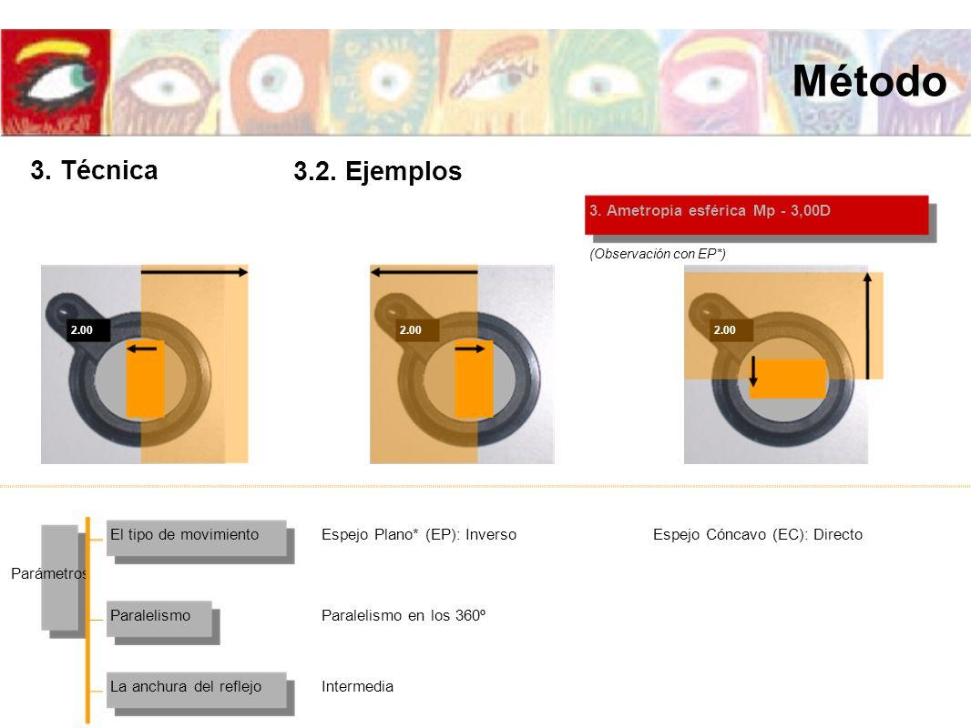 2.00 3. Ametropía esférica Mp - 3,00D El tipo de movimiento La anchura del reflejo Paralelismo Parámetros Espejo Plano* (EP): InversoEspejo Cóncavo (E