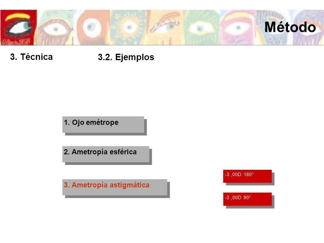 1. Ojo emétrope 2. Ametropía esférica 3. Ametropía astigmática -3,00D 180º -3,00D 90º Método 3. Técnica 3.2. Ejemplos