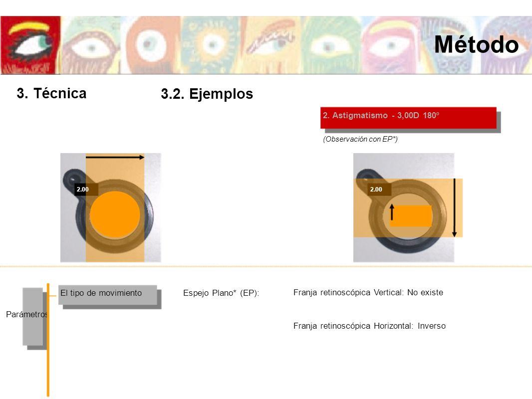 2.00 2. Astigmatismo - 3,00D 180º El tipo de movimiento Parámetros Espejo Plano* (EP): (Observación con EP*) Franja retinoscópica Vertical: No existe