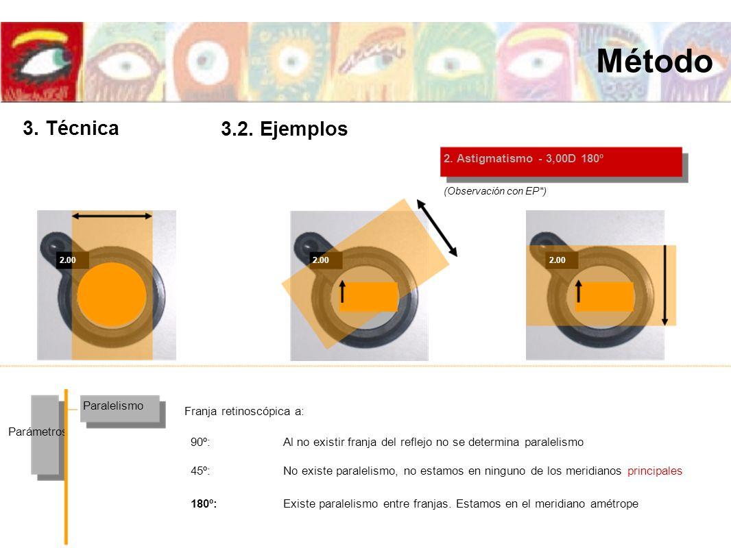 2.00 2. Astigmatismo - 3,00D 180º Paralelismo Parámetros Franja retinoscópica a: (Observación con EP*) 2.00 Existe paralelismo entre franjas. Estamos