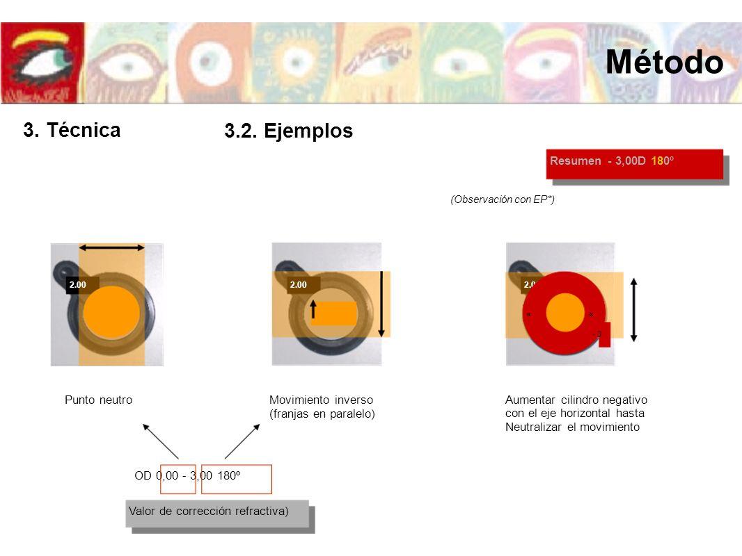 2.00 (Observación con EP*) 2.00 « - 3 « Punto neutroMovimiento inverso (franjas en paralelo) Aumentar cilindro negativo con el eje horizontal hasta Ne