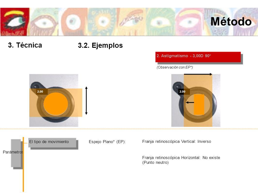 2.00 2. Astigmatismo - 3,00D 90º El tipo de movimiento Parámetros Espejo Plano* (EP): (Observación con EP*) Franja retinoscópica Vertical: Inverso Fra