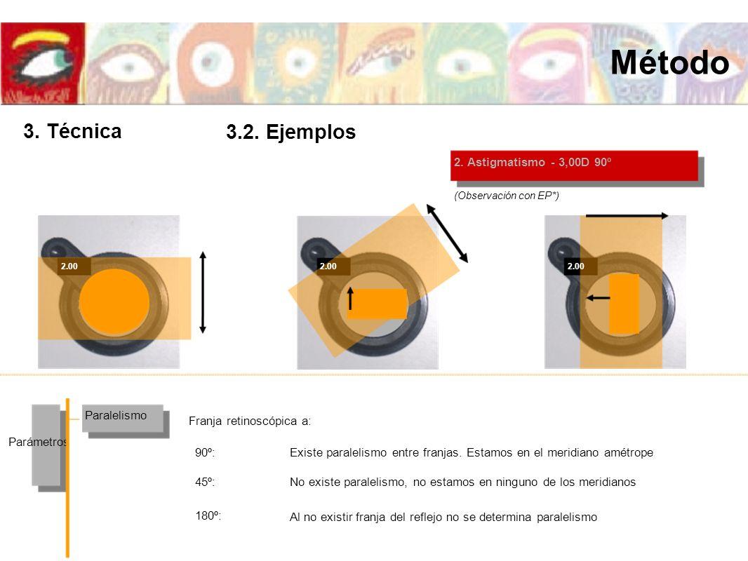 2. Astigmatismo - 3,00D 90º Paralelismo Parámetros Franja retinoscópica a: (Observación con EP*) 2.00 Existe paralelismo entre franjas. Estamos en el