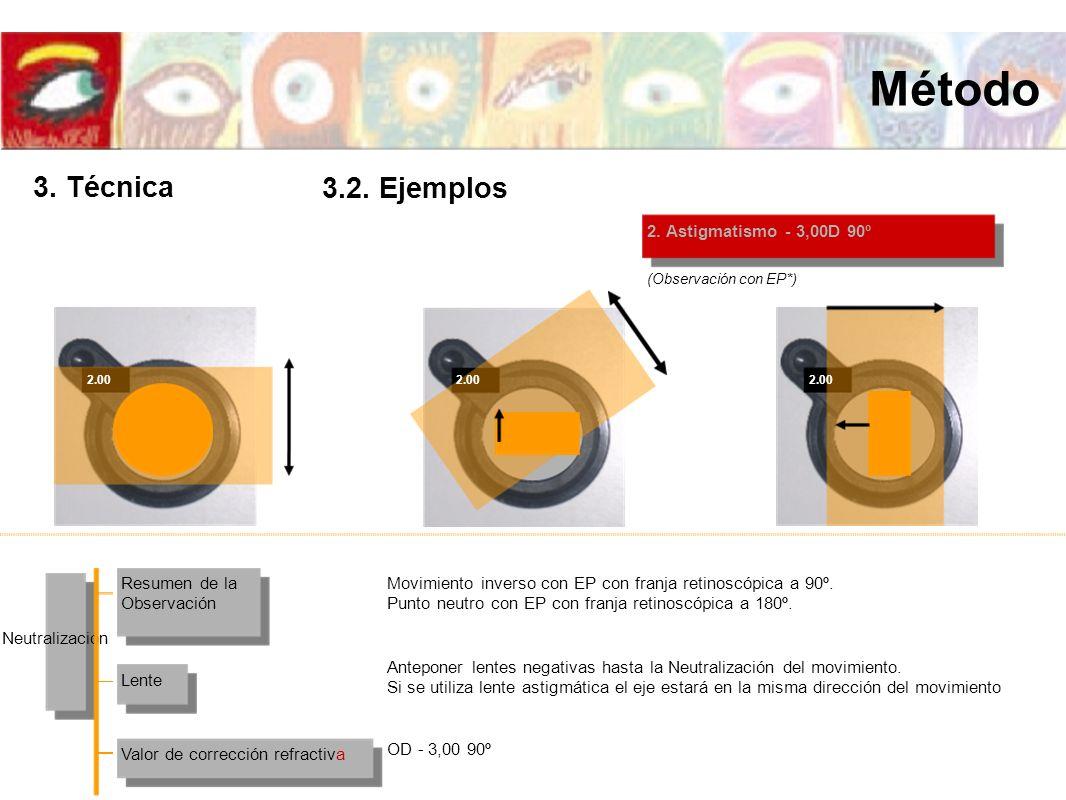 2. Astigmatismo - 3,00D 90º (Observación con EP*) 2.00 Resumen de la Observación Valor de corrección refractiva Lente Neutralización Movimiento invers
