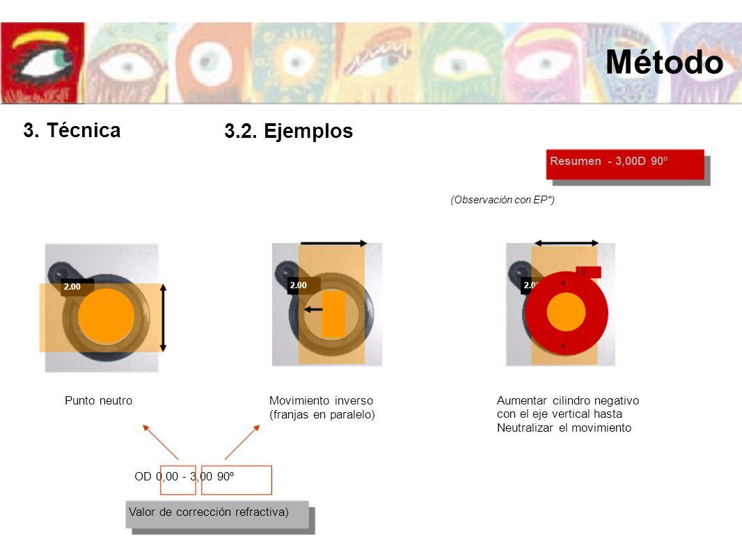 2.00 Resumen - 3,00D 90º (Observación con EP*) 2.00 « - 3 « Punto neutroMovimiento inverso (franjas en paralelo) Aumentar cilindro negativo con el eje