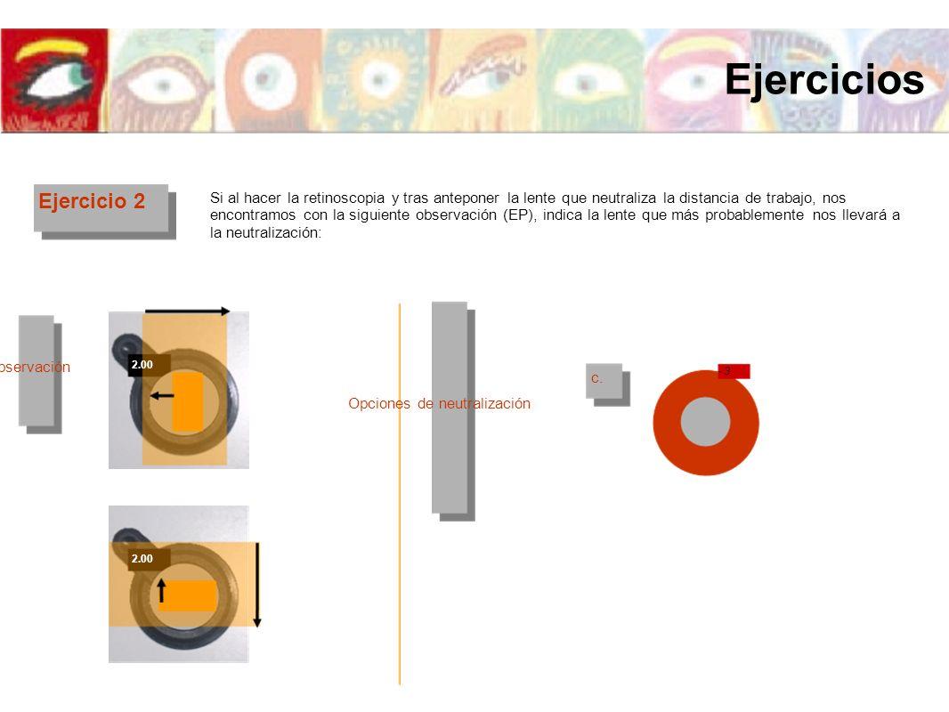 Ejercicio 2 Si al hacer la retinoscopia y tras anteponer la lente que neutraliza la distancia de trabajo, nos encontramos con la siguiente observación