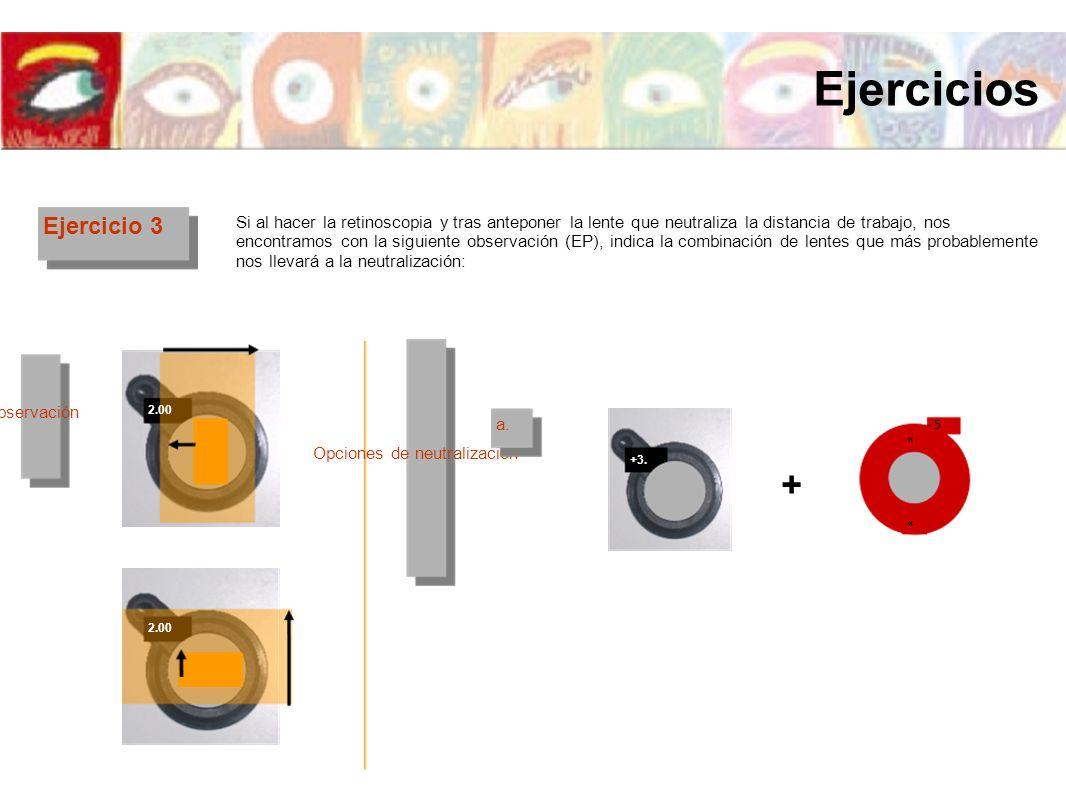 Ejercicio 3 Si al hacer la retinoscopia y tras anteponer la lente que neutraliza la distancia de trabajo, nos encontramos con la siguiente observación