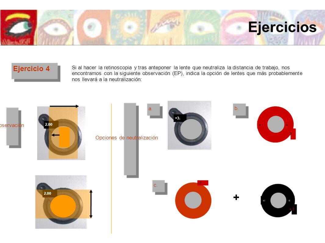 Ejercicio 4 Si al hacer la retinoscopia y tras anteponer la lente que neutraliza la distancia de trabajo, nos encontramos con la siguiente observación