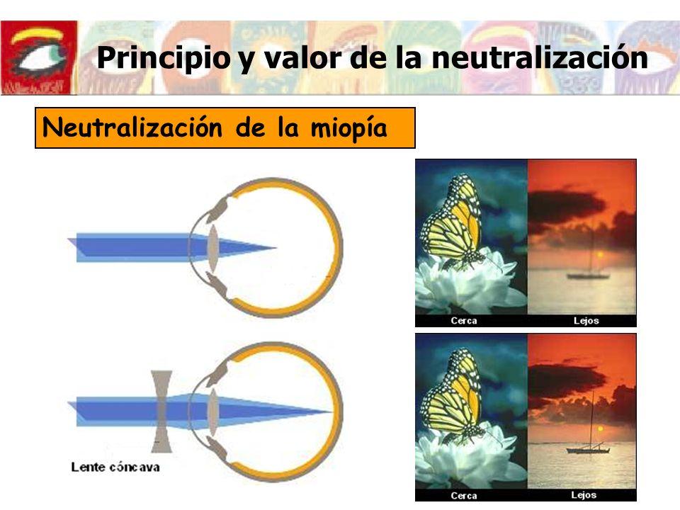 Principio y valor de la neutralización Neutralización de la miopía
