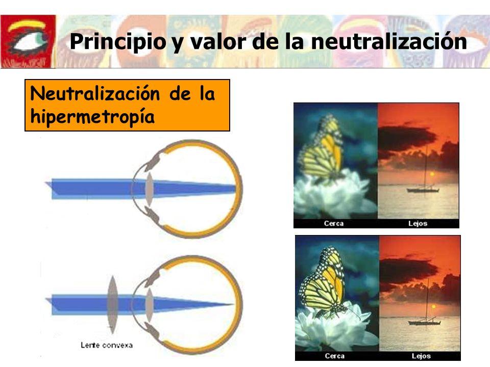 Principio y valor de la neutralización Neutralización de la hipermetropía