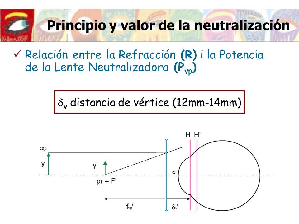 Principio y valor de la neutralización Relación entre la Refracción (R) i la Potencia de la Lente Neutralizadora (P vp ) v distancia de vértice (12mm-