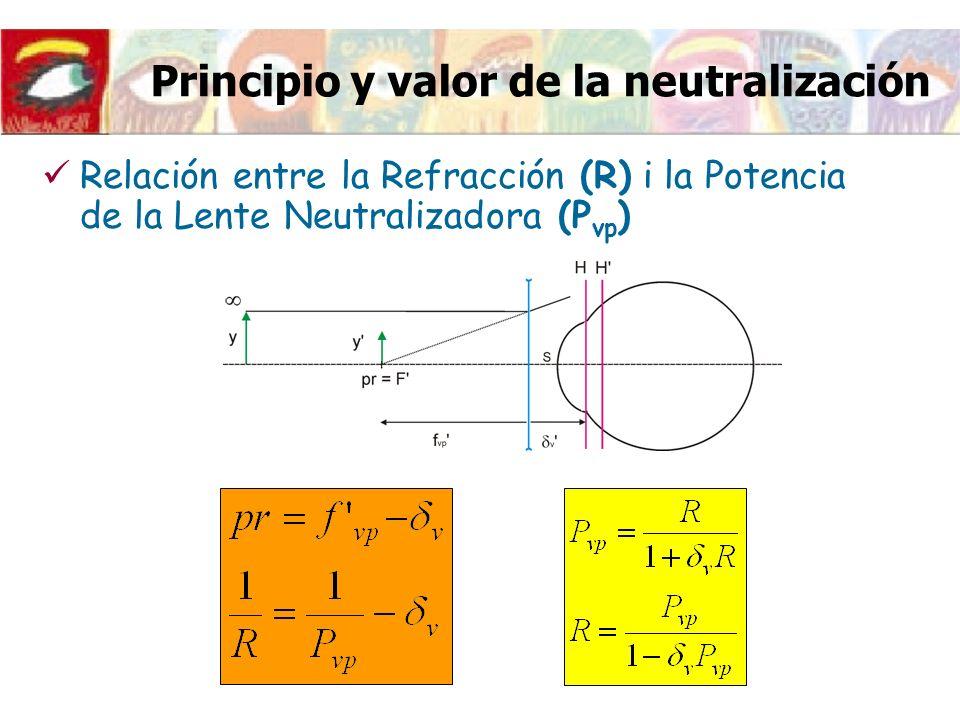 Principio y valor de la neutralización Relación entre la Refracción (R) i la Potencia de la Lente Neutralizadora (P vp )