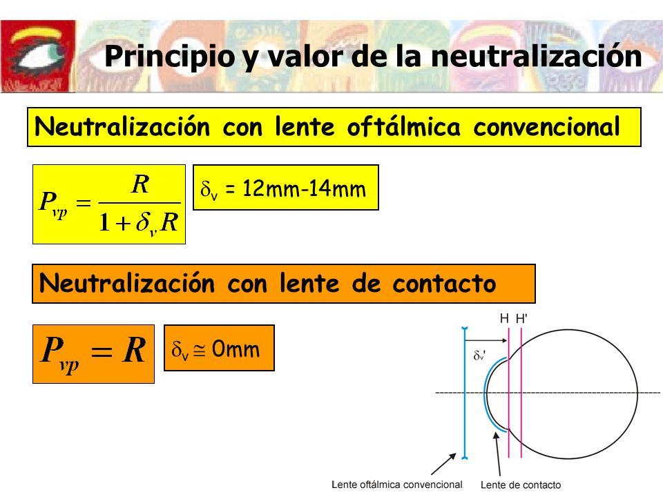Principio y valor de la neutralización Neutralización con lente oftálmica convencional v = 12mm-14mm Neutralización con lente de contacto v 0mm