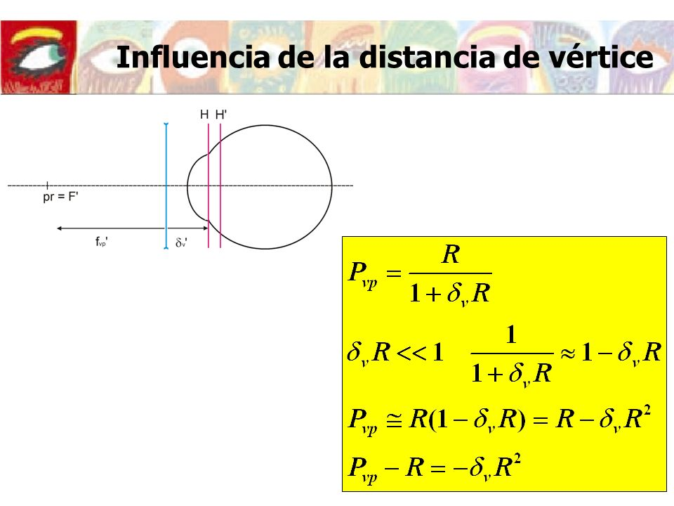 Influencia de la distancia de vértice