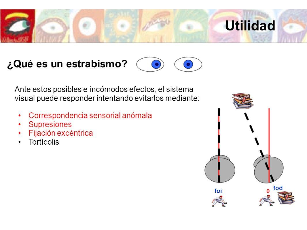 foi fod 0 Ante estos posibles e incómodos efectos, el sistema visual puede responder intentando evitarlos mediante: Correspondencia sensorial anómala