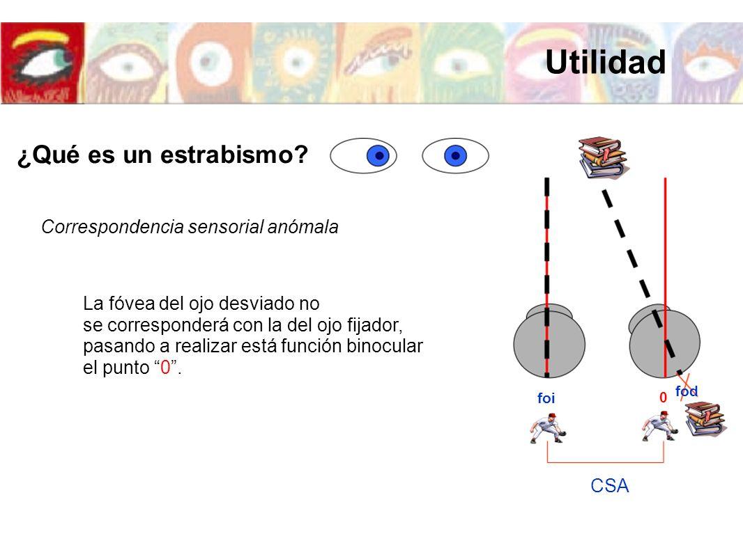 foi fod 0 CSA Correspondencia sensorial anómala La fóvea del ojo desviado no se corresponderá con la del ojo fijador, pasando a realizar está función