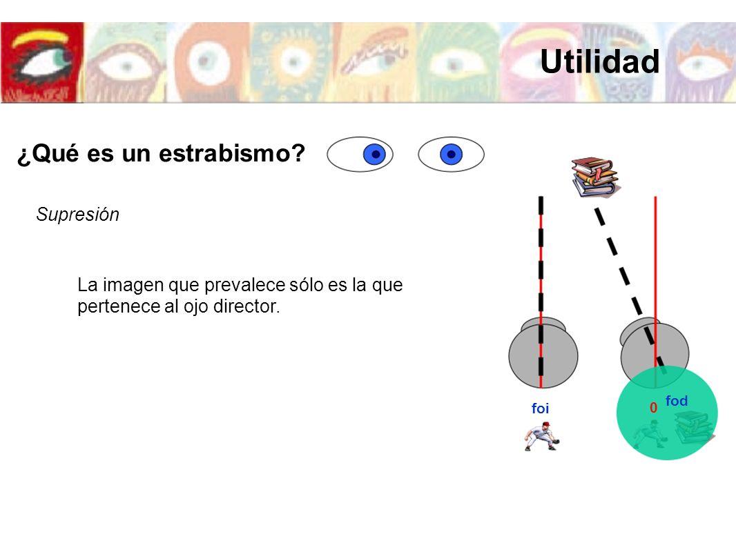 foi fod 0 Supresión La imagen que prevalece sólo es la que pertenece al ojo director. ¿Qué es un estrabismo? Utilidad