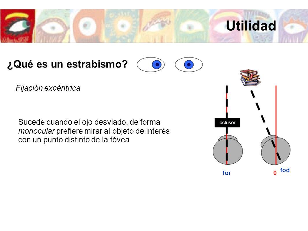 foi fod 0 oclusor Fijación excéntrica Sucede cuando el ojo desviado, de forma monocular prefiere mirar al objeto de interés con un punto distinto de l