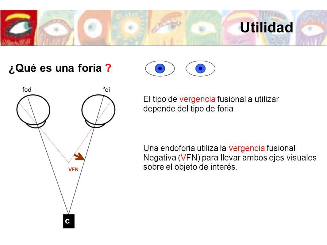 foifod c Una endoforia utiliza la vergencia fusional Negativa (VFN) para llevar ambos ejes visuales sobre el objeto de interés. VFN El tipo de vergenc