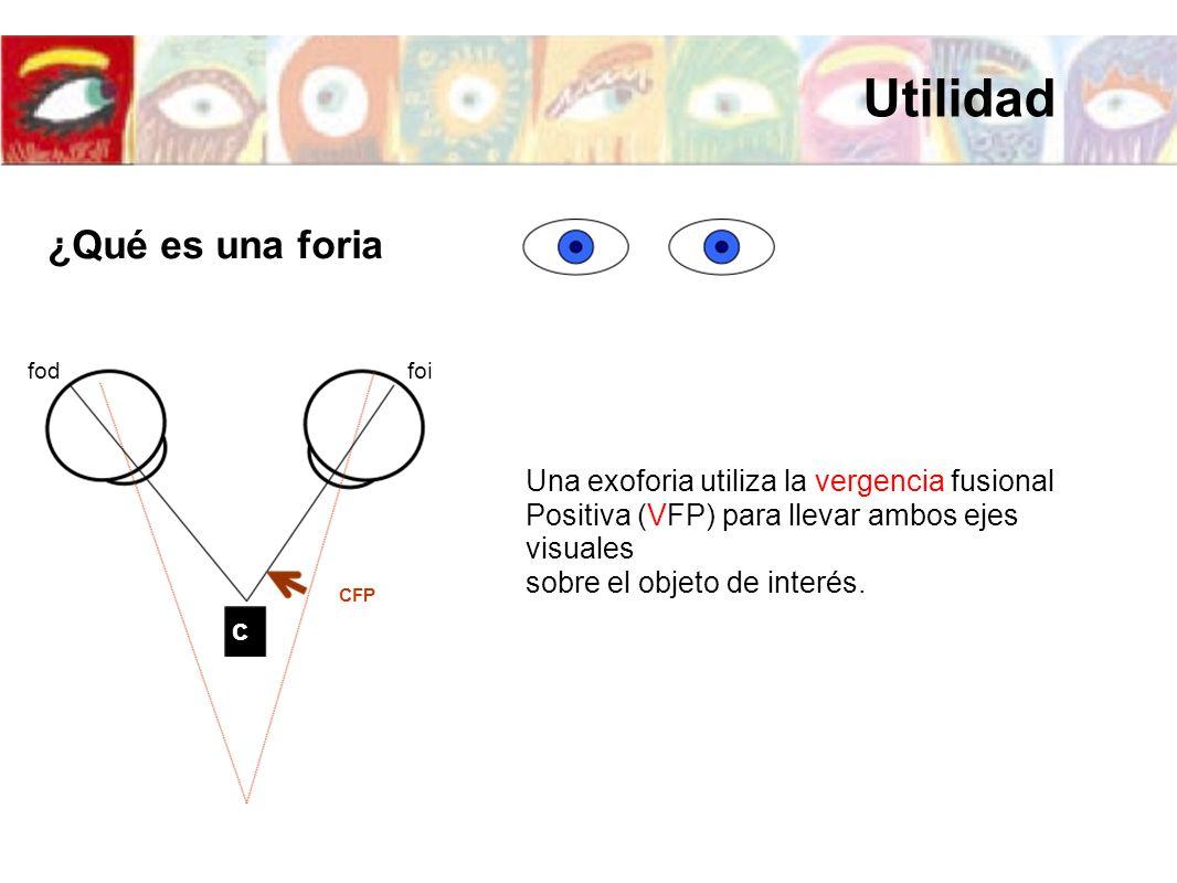 foifod c Una exoforia utiliza la vergencia fusional Positiva (VFP) para llevar ambos ejes visuales sobre el objeto de interés. CFP ¿Qué es una foria U