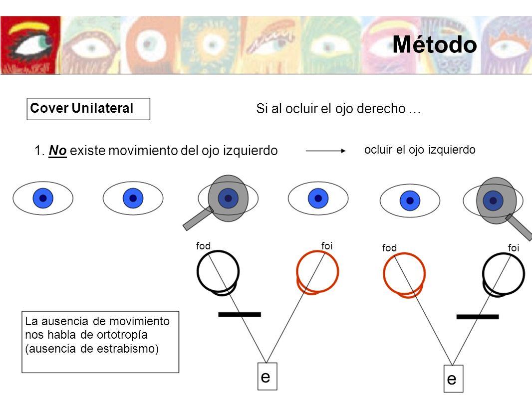 Si al ocluir el ojo derecho … 1. No existe movimiento del ojo izquierdo e foifod e foifod ocluir el ojo izquierdo La ausencia de movimiento nos habla
