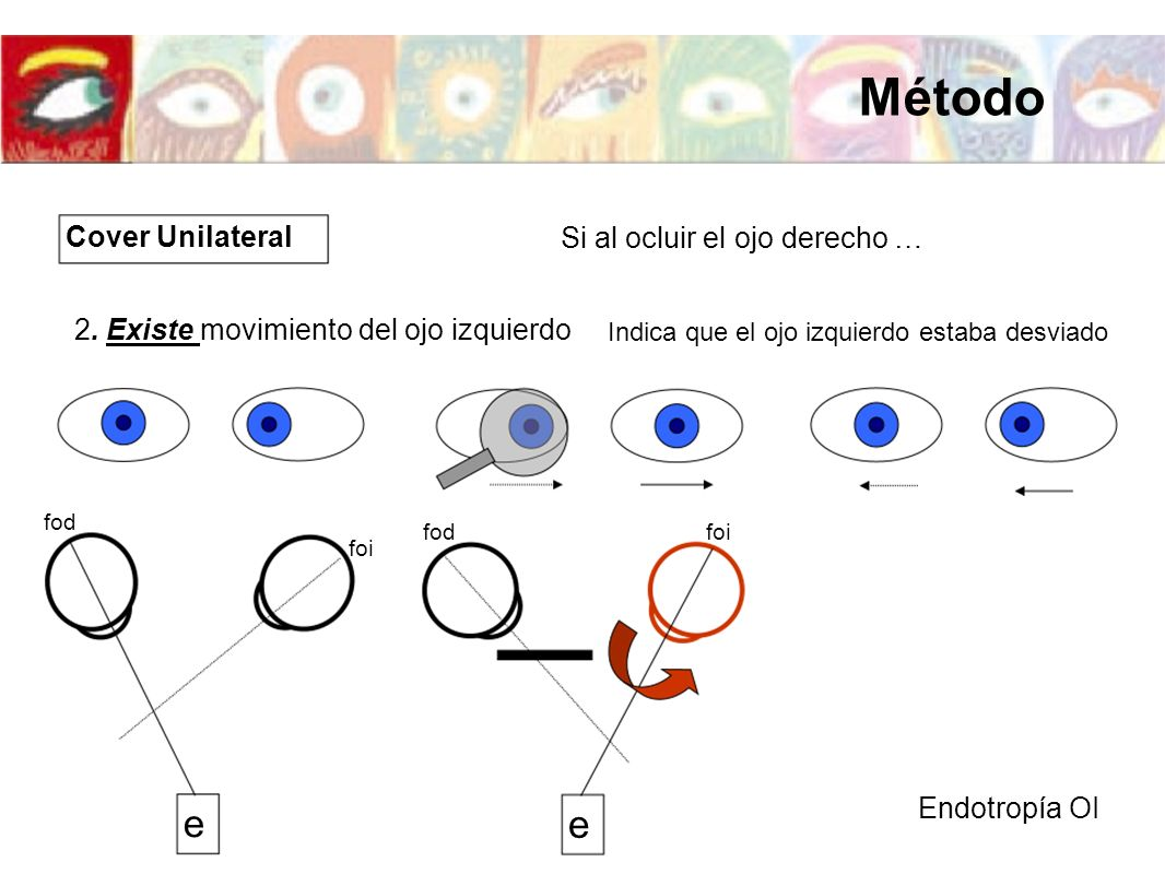 Si al ocluir el ojo derecho … 2. Existe movimiento del ojo izquierdo Endotropía OI e foi fod Indica que el ojo izquierdo estaba desviado e foifod Cove