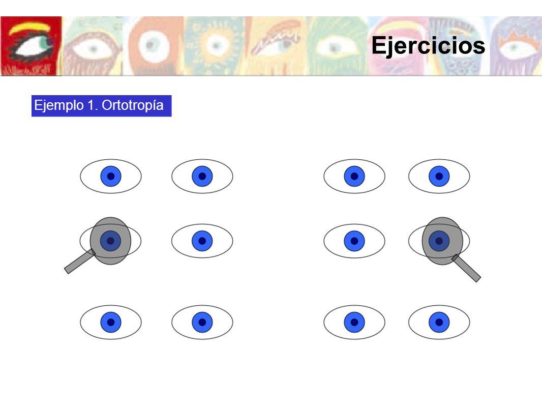 Ejemplo 1. Ortotropía Ejercicios